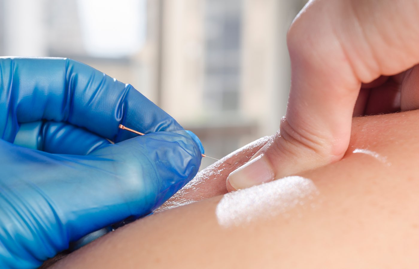 dry needling treatment moncton