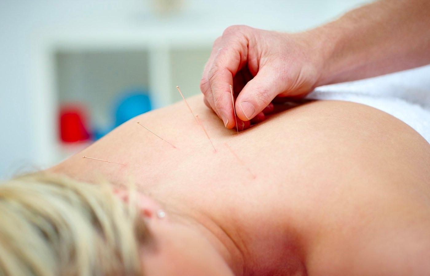 Acupuncture Clinic Moncton
